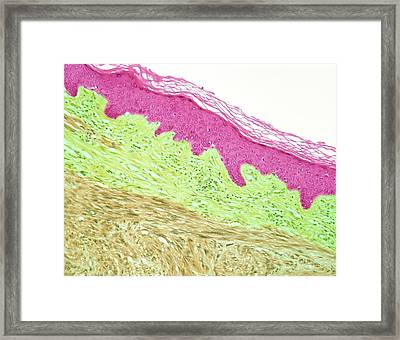 Leiomyosarcoma Of Skin. Light Micrograph Framed Print by Steve Gschmeissner