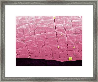 Lip Skin Framed Print by Thierry Berrod, Mona Lisa Production
