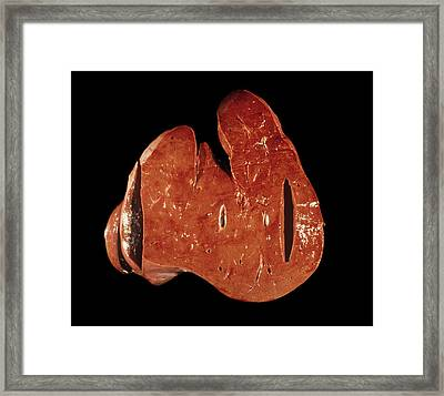 Liver Framed Print by Pr. R. Abelanet - Cnri