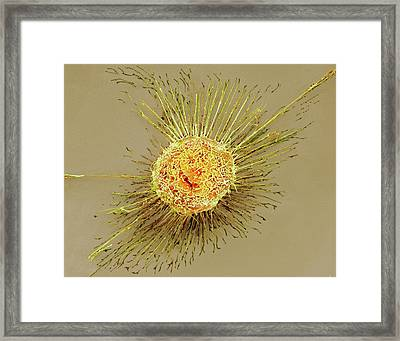 Lung Epithelial Cell Framed Print by Science Photo Library