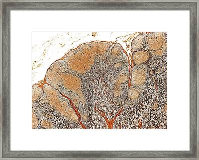 Lymph Node Framed Print by Microscape