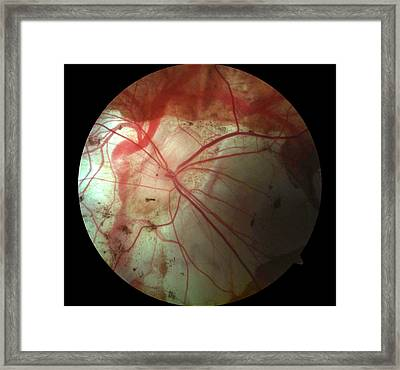 Marfan Syndrome Framed Print