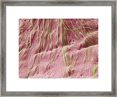 Microsporum Canis Infection Framed Print by Thierry Berrod, Mona Lisa Production