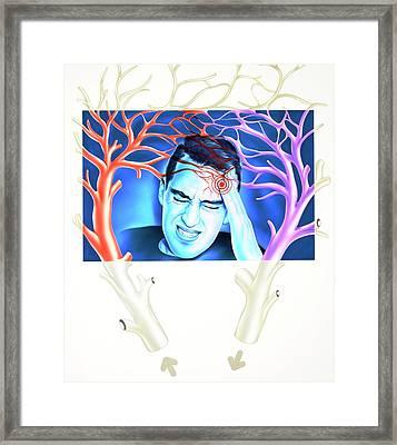 Migraine Framed Print by John Bavosi