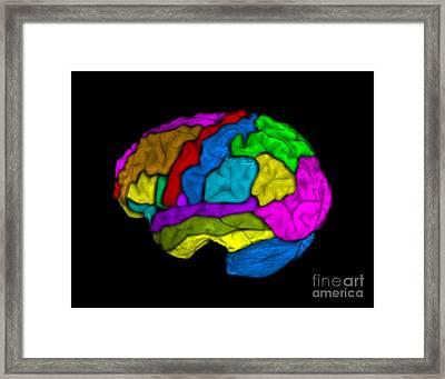 Mri Of Normal Brain Framed Print by Living Art Enterprises
