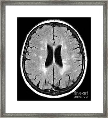 Multiple Sclerosis, Mri Scan Framed Print by Du Cane Medical Imaging Ltd.
