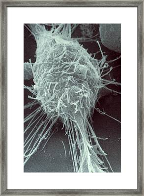 Neuroblastoma Cell Framed Print by Biology Pics