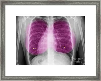 Nipple Piercings Framed Print