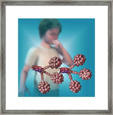 Normal And Unhealthy Lungs Framed Print