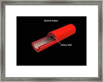 Normal Artery Anatomy Framed Print by Mikkel Juul Jensen