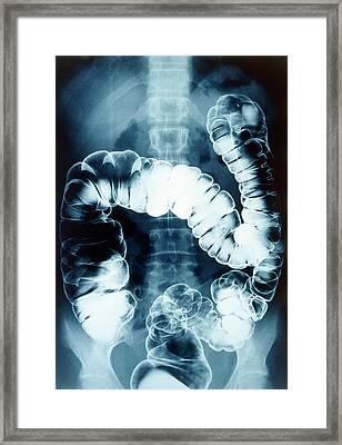 Normal Colon Framed Print by Gjlp