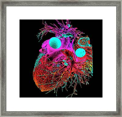 Normal Human Heart Framed Print by K H Fung