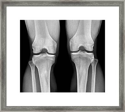 Normal Knees Framed Print