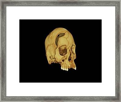 Nubian Skull Framed Print by Dan Sykes/natural History Museum, London