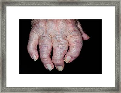Osteoarthritis Of The Hand Framed Print by Dr P. Marazzi/science Photo Library
