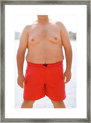 Overweight Man Framed Print by Ian Hooton/science Photo Library