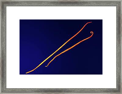 Parasitic Roundworms Framed Print by Ami Images