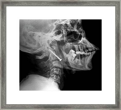 Pinned Broken Neck Framed Print by Zephyr