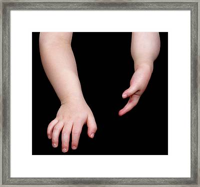 Poland Syndrome Framed Print by Science Photo Library