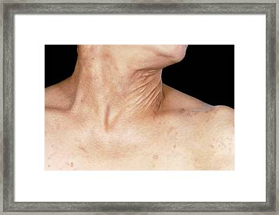 Pseudoxanthoma Elasticum Framed Print by Science Photo Library