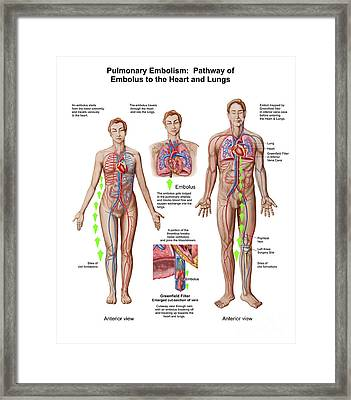 Pulmonary Embolism, Pathway Of Embolus Framed Print