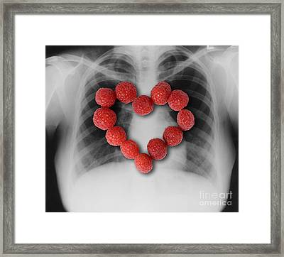 Raspberries, Heart-healthy Fruit Framed Print by Gwen Shockey