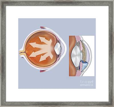 Retina Of Eye With Glaucoma Framed Print