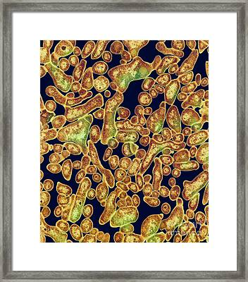 Section Of Nocardia Asteroides Framed Print