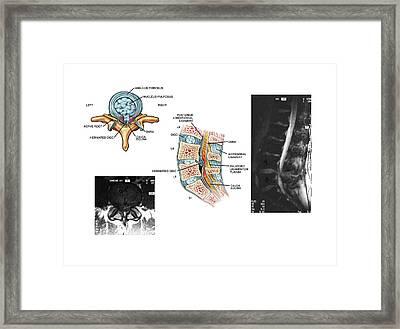 Slipped Disc In The Lumbar Spine Framed Print by John T. Alesi