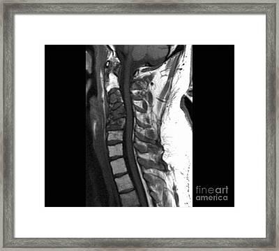 Spinal Cancer, Mri Scan Framed Print