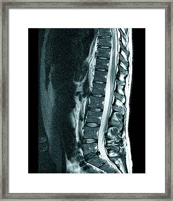 Spine In Multiple Sclerosis Framed Print by Zephyr/science Photo Library