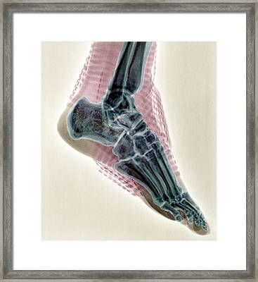 Sprained Ankle Framed Print by Zephyr