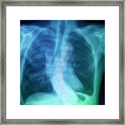 Stent In Thoracic Aorta Framed Print by Zephyr/science Photo Library