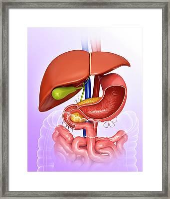 Stomach And Internal Organs Framed Print by Pixologicstudio