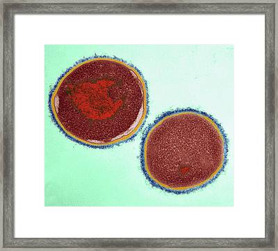 Streptococcus Pyogenes Bacteria Framed Print by Dr Klaus Boller