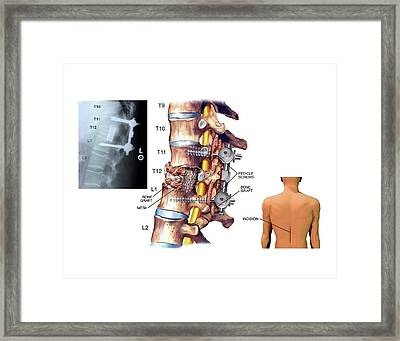 Surgery To Fuse The Thoracic Spine Framed Print by John T. Alesi
