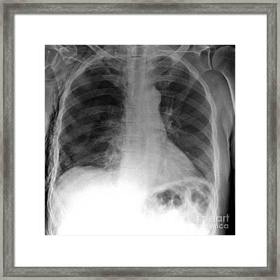 Tension Pneumothorax, X-ray Framed Print