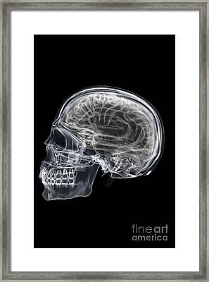 The Skull And Brain Framed Print