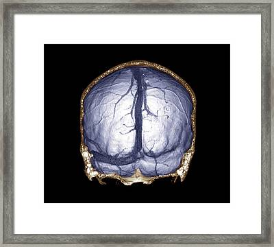 Thrombophlebitis Of The Brain Framed Print