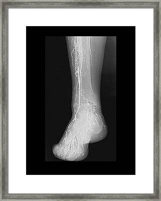 Thrombosis Framed Print