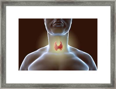 Thyroid Gland Framed Print by Kateryna Kon/science Photo Library