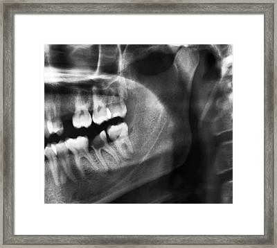 Tooth Decay Framed Print by Zephyr