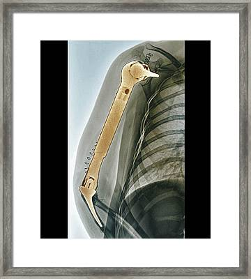 Total Upper Arm Bone Replacement Framed Print by Zephyr