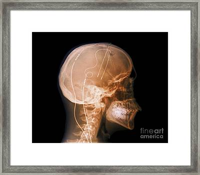 Tourettes Treatment, X-ray Framed Print by Zephyr