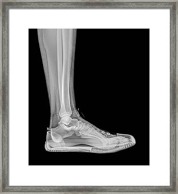 Trainers X-ray Framed Print by Photostock-israel