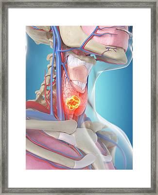 Tumor In Human Thyroid Framed Print