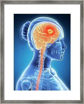 Tumour In The Brain Framed Print by Sebastian Kaulitzki