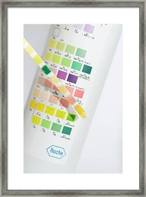 Urine Test In Patient With Jaundice Framed Print
