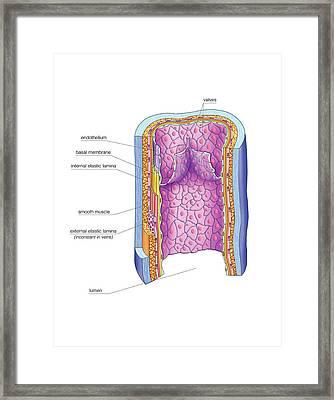 Vascular Anastomosis Framed Print