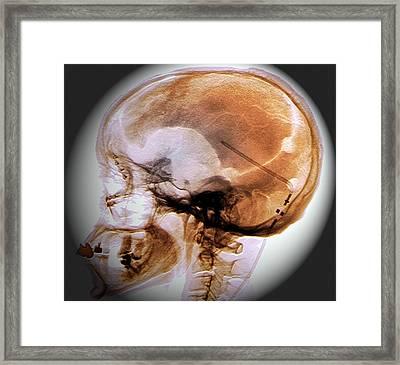 Ventricular Shunt Framed Print by Zephyr